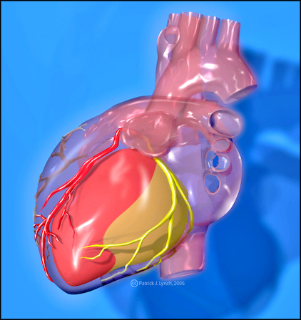 Heart with coronary arteries2